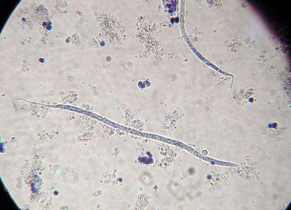フィラリアとはどんな寄生虫か