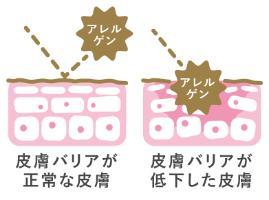 皮膚バリア